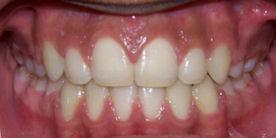Summit Orthodontics Braces Crowding Treatment