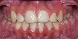 Braces After Orthodontic Treatment Rancho Cucamonga, CA