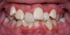 Summit Orthodontics, Crowding Braces Treatment