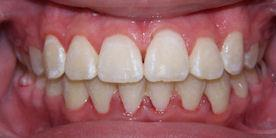 Summit Braces Treatment After