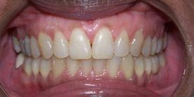 Orthodontic Treatment Spacing After Braces